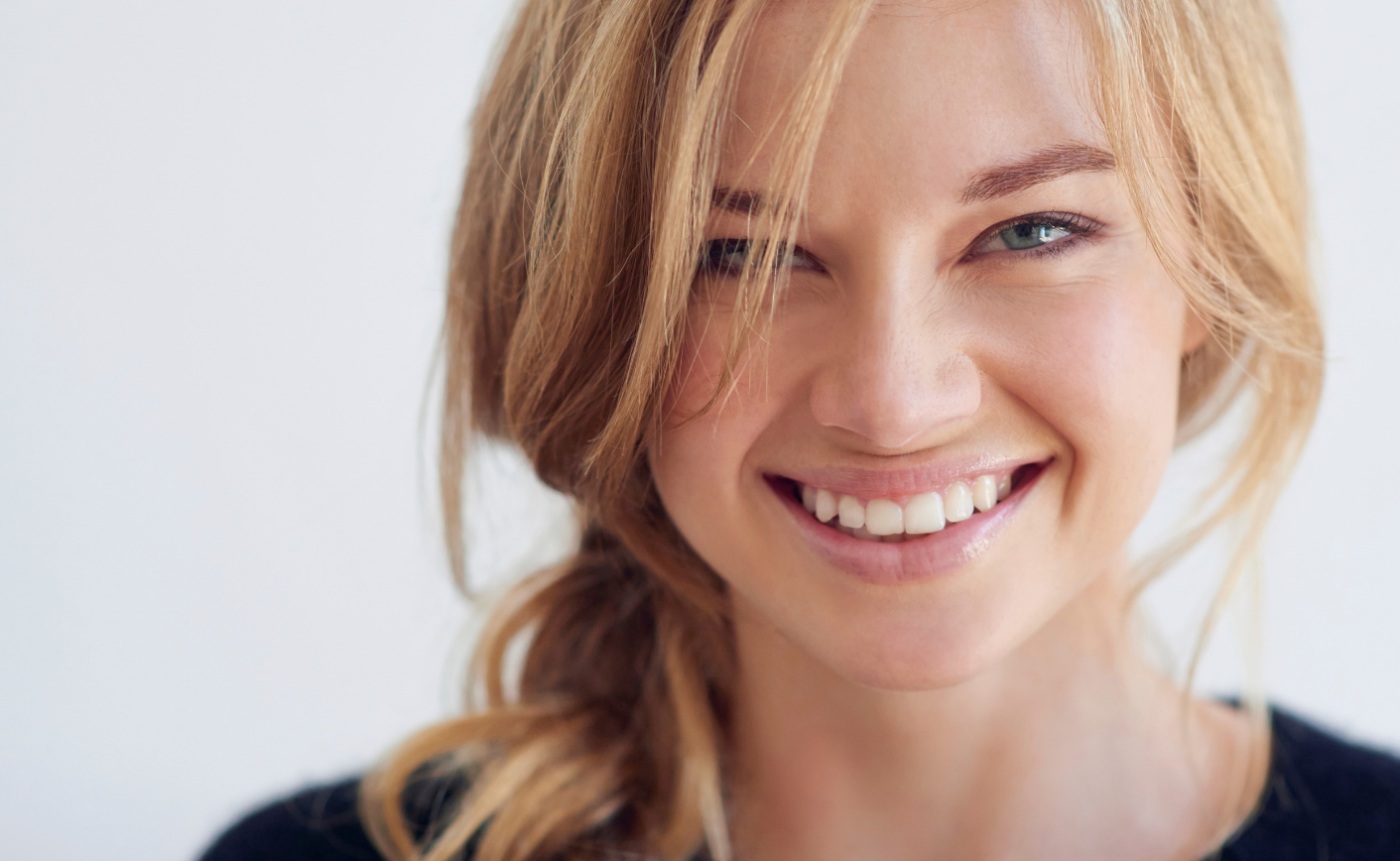 a blonde lady smiling with veneers